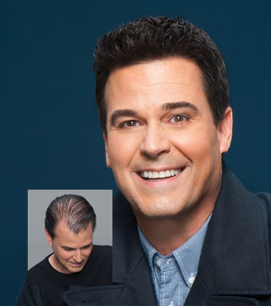 Men's Non-Surgical Hair Replacement Systems - Madison Wisconsin
